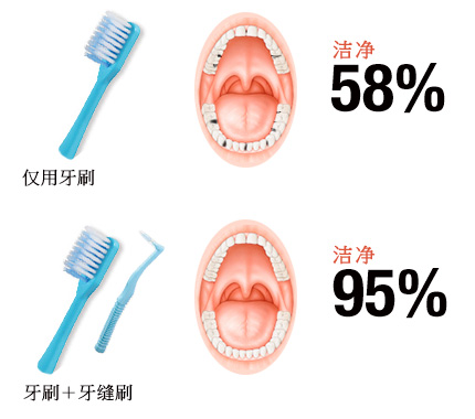 Plaque removal rate is improved to 95% by combination use with toothbrush!